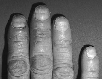 8abff85165 One cause of nail damage is the direct application of certain cosmetic  preparations
